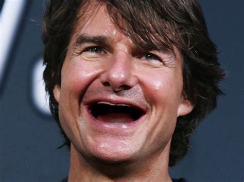 31 Celebrities Without Teeth - Thedailytop